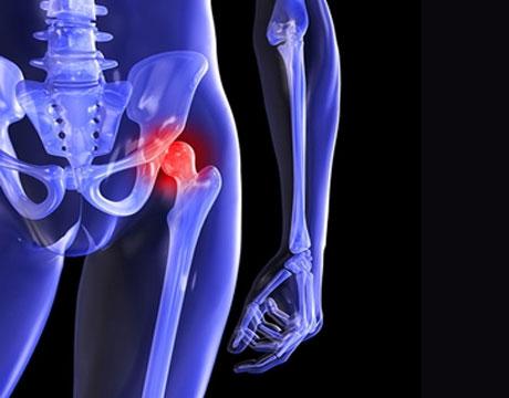 shoulder replacement surgeon in surat